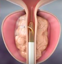 REZUM. Tratamiento mínimamente invasivo en HBP.