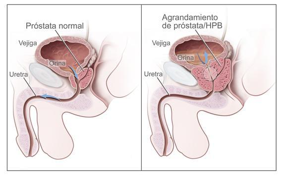 Vaporización/Enucleacion LASER de próstata